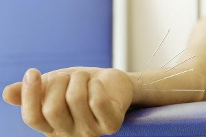 acupuncture-carpal-tunnel-syndrome-wrist-300x200